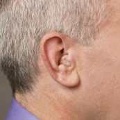 Custom In-the-Canal (ITC) | Hearing Aid Types | Hearing Doctors of Kansas