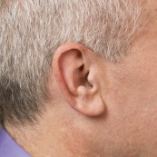 Custom Completely-in-Canal (CIC) | Hearing Aid Types | Hearing Doctors of Kansas