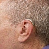 Behind-the-Ear (BTE) with an ear mold | Hearing Aid Types | Hearing Doctors of Kansas